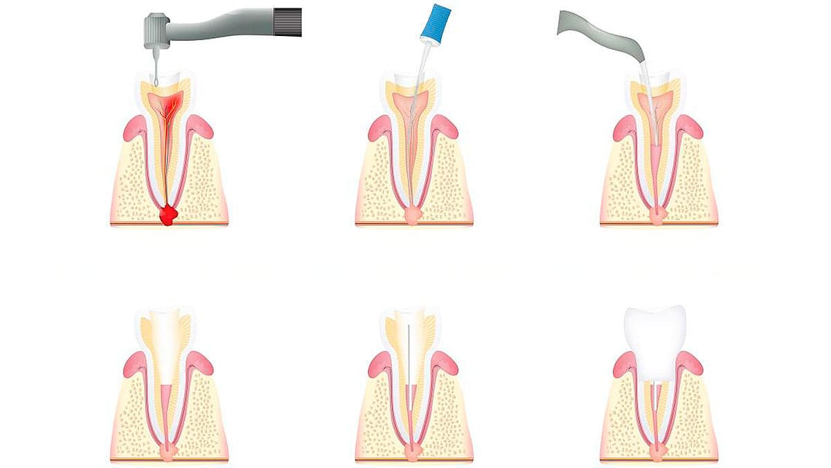 Стадии лечения зубов от кариеса