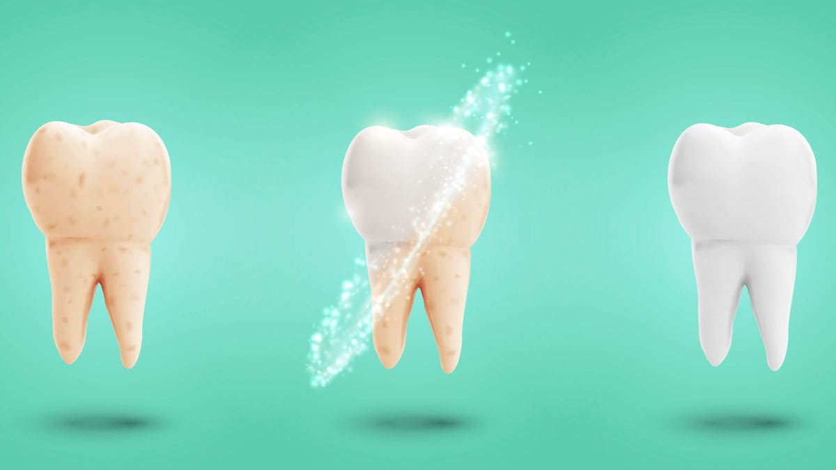Чистка зубов для профилактики кариеса